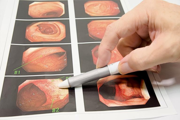 考えられる病気―主な消化器疾患
